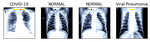 Covid-19 Diagnosis using Radiography Images